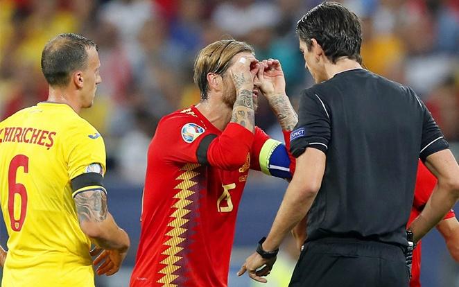 Az odavágó nem sikerült tükörsimára a La Rojának. fotó: Marca