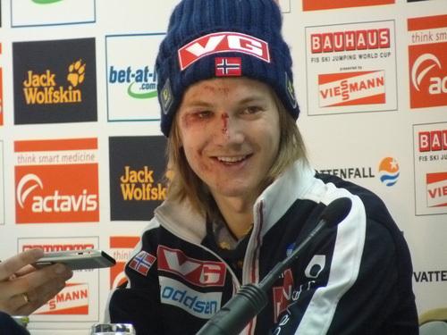 Tom Hilde már néhány órával a baleset után is mosolygott - Fotó: berkutschi.com